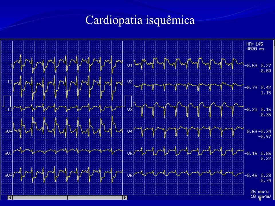 Cardiopatia isquêmica 8