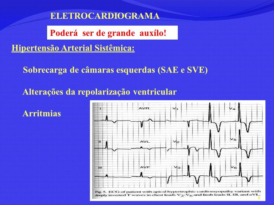 Hipertensão Arterial Sistêmica: Sobrecarga de câmaras esquerdas (SAE e SVE) Alterações da repolarização ventricular Arritmias ELETROCARDIOGRAMA 9 Pode