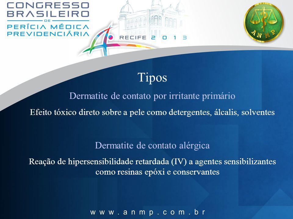 Tipos Dermatite de contato por irritante primário Efeito tóxico direto sobre a pele como detergentes, álcalis, solventes Dermatite de contato alérgica