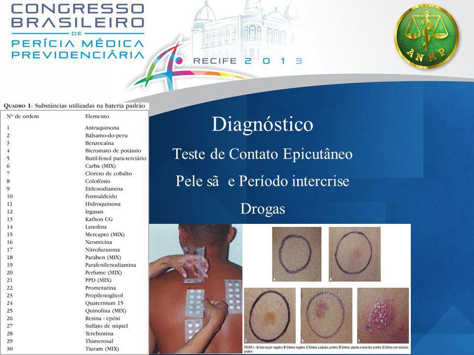 Diagnóstico Teste de Contato Epicutâneo Pele sã e Período intercrise Drogas