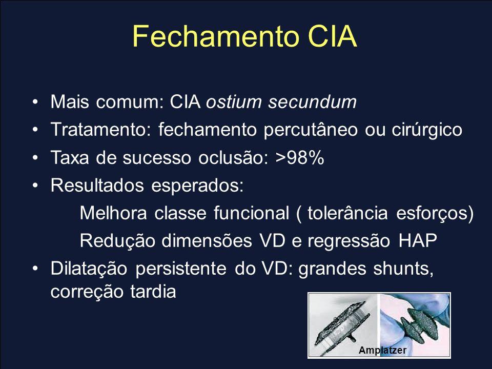 Fechamento CIA Mais comum: CIA ostium secundum Tratamento: fechamento percutâneo ou cirúrgico Taxa de sucesso oclusão: >98% Resultados esperados: Melh