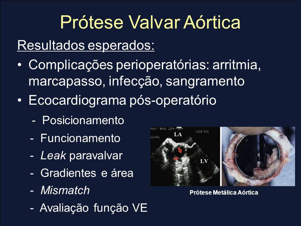 Prótese Valvar Aórtica Resultados esperados: Complicações perioperatórias: arritmia, marcapasso, infecção, sangramento Ecocardiograma pós-operatório -