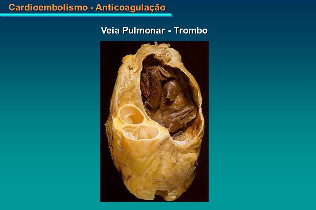 Cardioembolismo - Anticoagulação Infarto Apical - Ventrículo Esquerdo