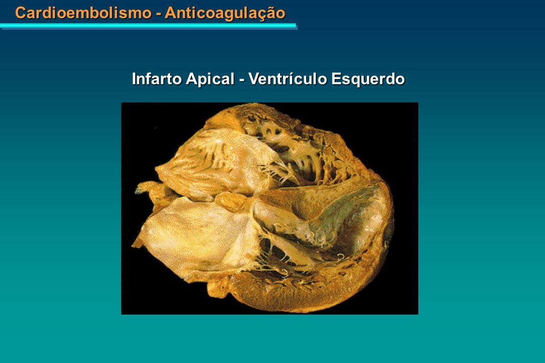 Cardioembolismo - Anticoagulação Válvula Aórtica – Endocardite Infecciosa com Vegetações