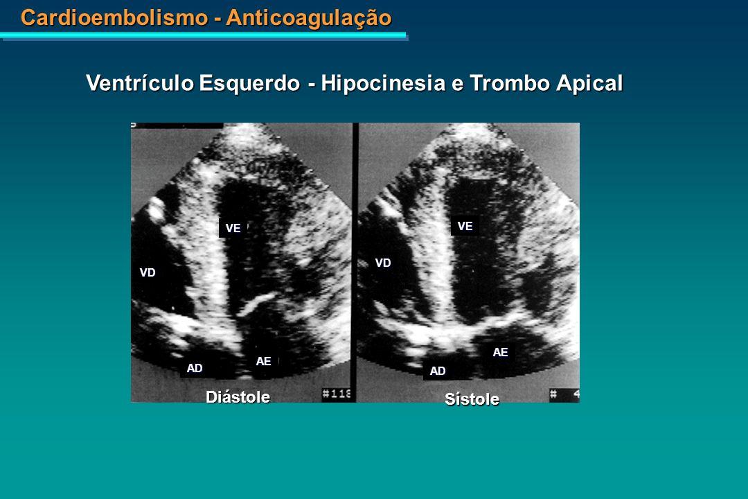Cardioembolismo - Anticoagulação Aneurisma apical Cardiopatia Chagásica - Aneurisma Ventricular Esquerdo