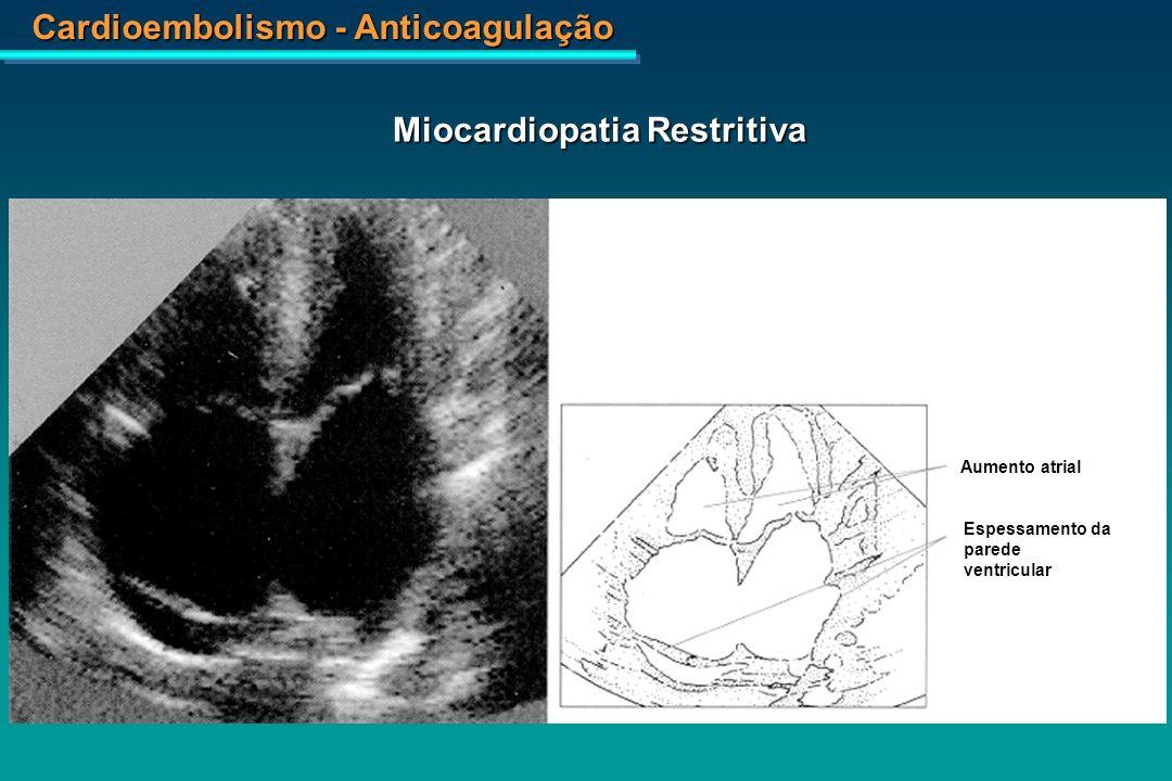 Cardioembolismo - Anticoagulação Esclerose Sistêmica – Microinfarto do Miocárdio com Necrose