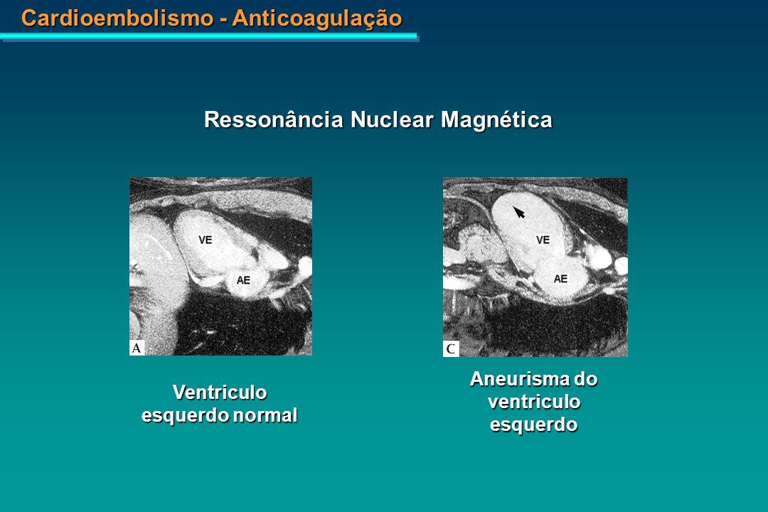 Cardioembolismo - Anticoagulação A.[ 13 N] Amônia B.