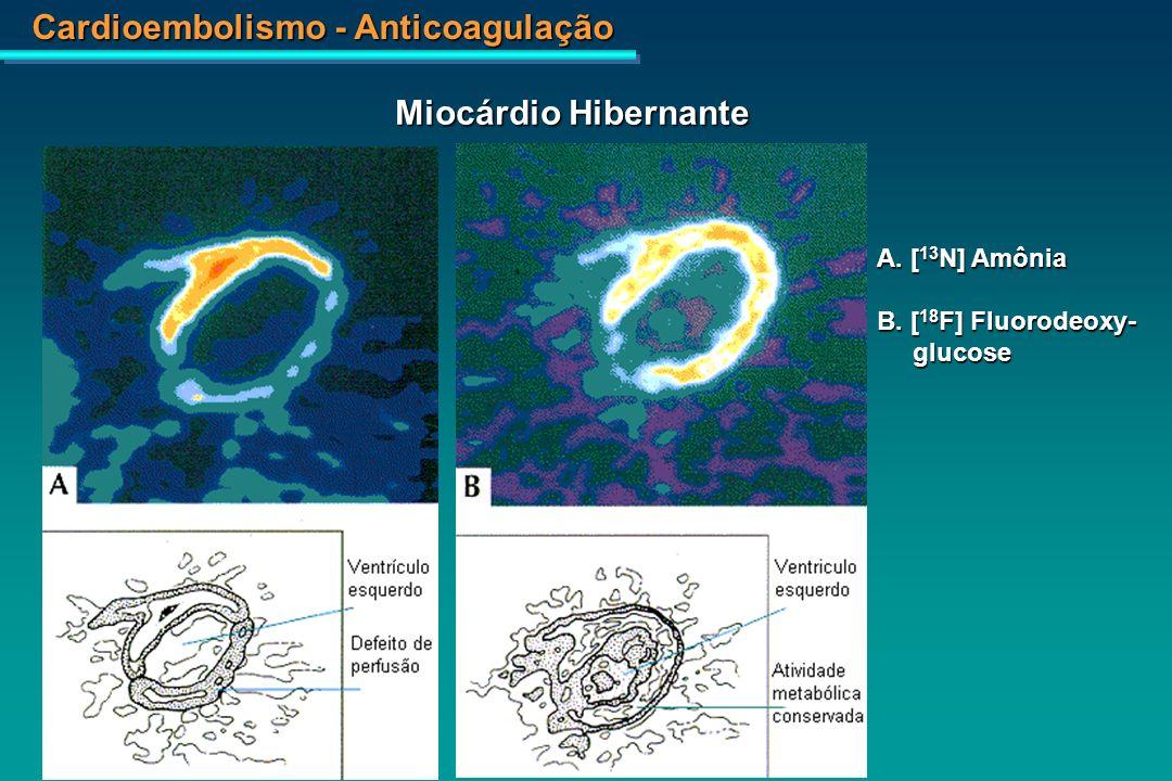 Cardioembolismo - Anticoagulação A.C.R. fem, 45 anos Mixoma do Átrio Esquerdo