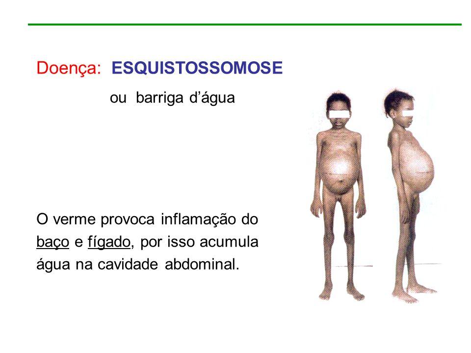 Doença: ESQUISTOSSOMOSE ou barriga dágua O verme provoca inflamação do baço e fígado, por isso acumula água na cavidade abdominal.