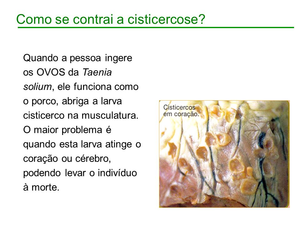Como se contrai a cisticercose? Quando a pessoa ingere os OVOS da Taenia solium, ele funciona como o porco, abriga a larva cisticerco na musculatura.