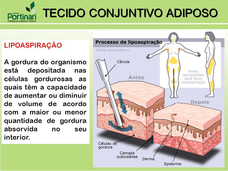 LIPOASPIRAÇÃO A gordura do organismo está depositada nas células gordurosas as quais têm a capacidade de aumentar ou diminuir de volume de acordo com