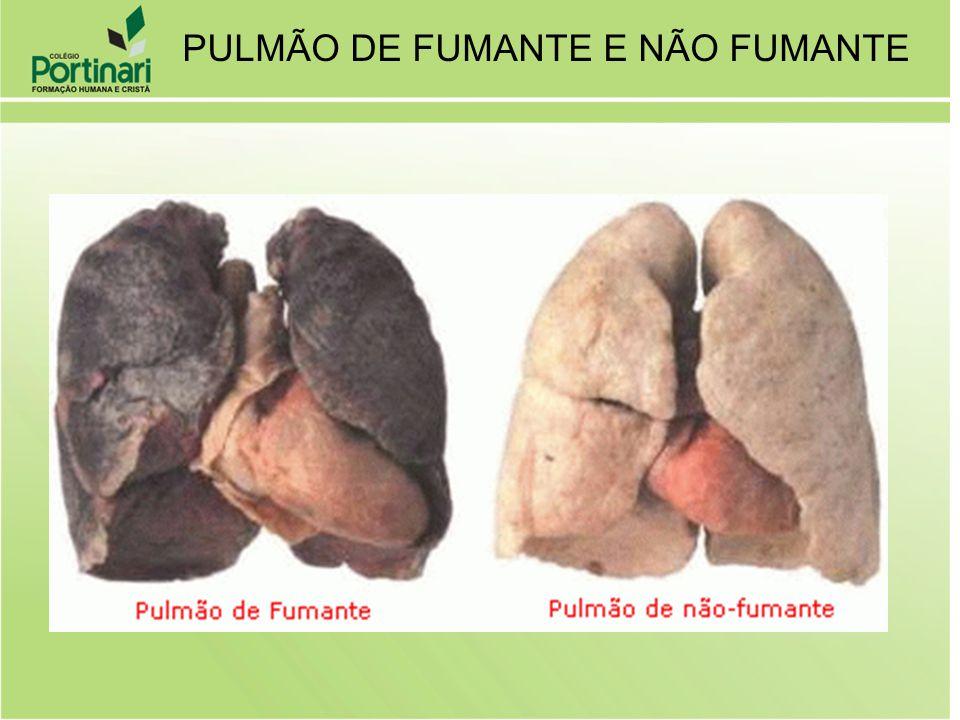 PULMÃO DE FUMANTE E NÃO FUMANTE