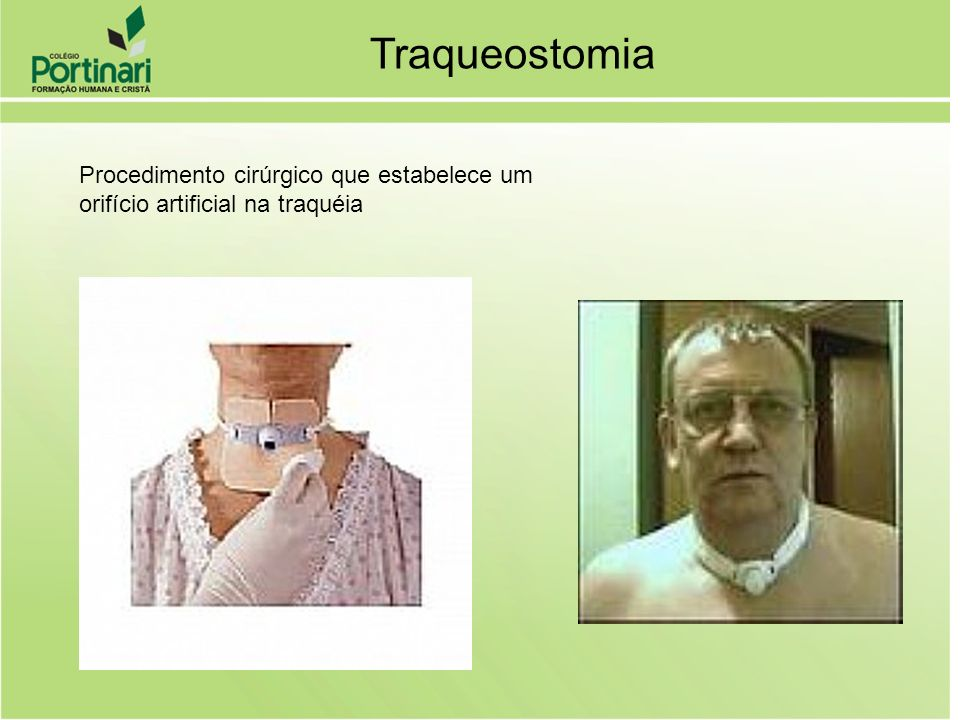 Traqueostomia Procedimento cirúrgico que estabelece um orifício artificial na traquéia