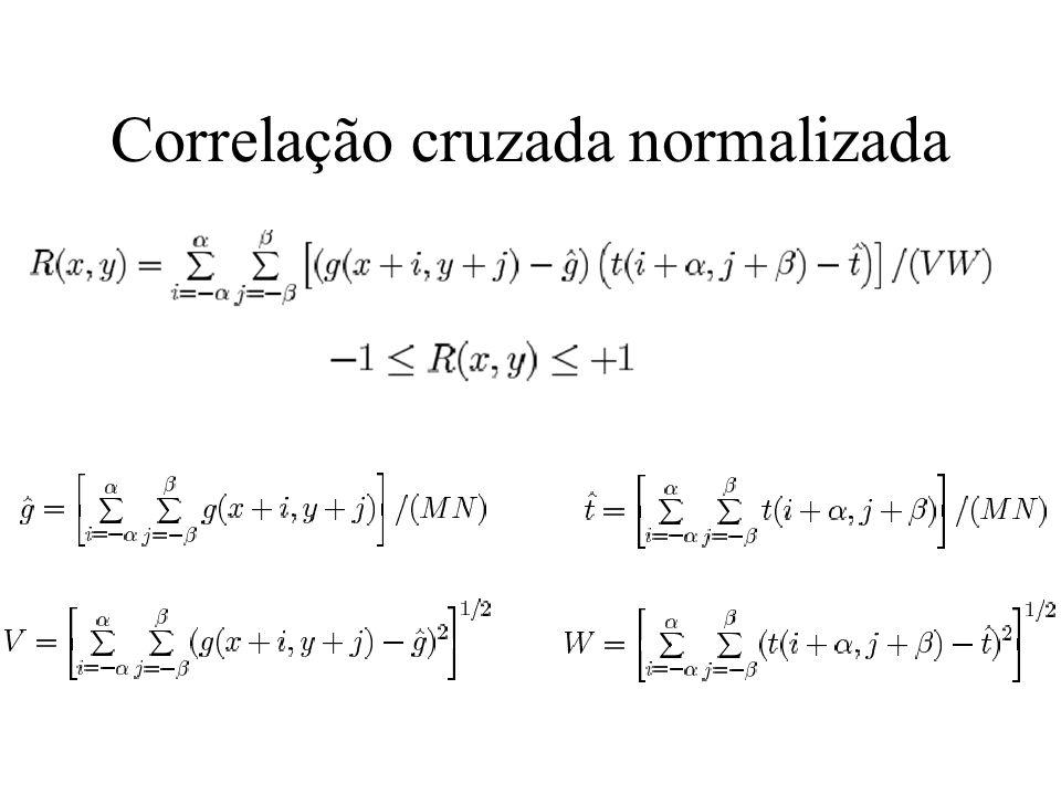 Correlação cruzada normalizada