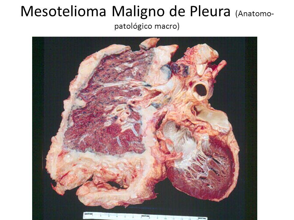 Mesotelioma Maligno de Pleura (Anatomo- patológico macro)