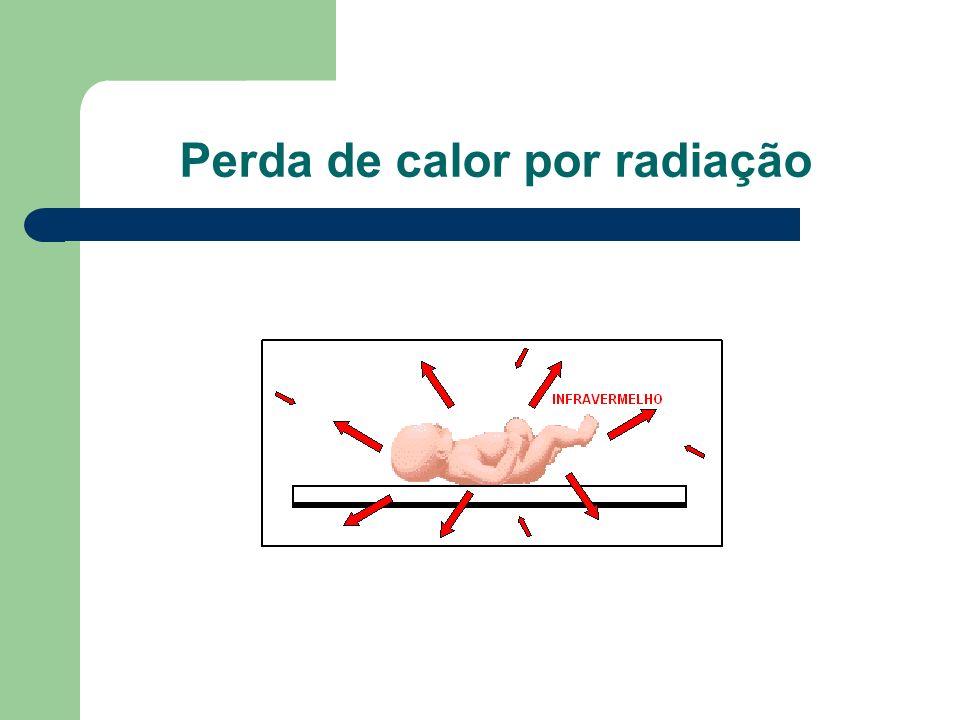 Perda de calor por radiação
