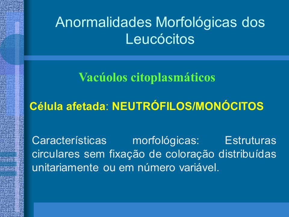 Anormalidades Morfológicas dos Leucócitos Vacúolos citoplasmáticos Célula afetada: NEUTRÓFILOS/MONÓCITOS Características morfológicas: Estruturas circulares sem fixação de coloração distribuídas unitariamente ou em número variável.