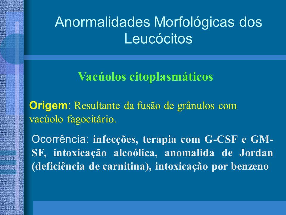 Anormalidades Morfológicas dos Leucócitos Vacúolos citoplasmáticos Origem: Resultante da fusão de grânulos com vacúolo fagocitário.
