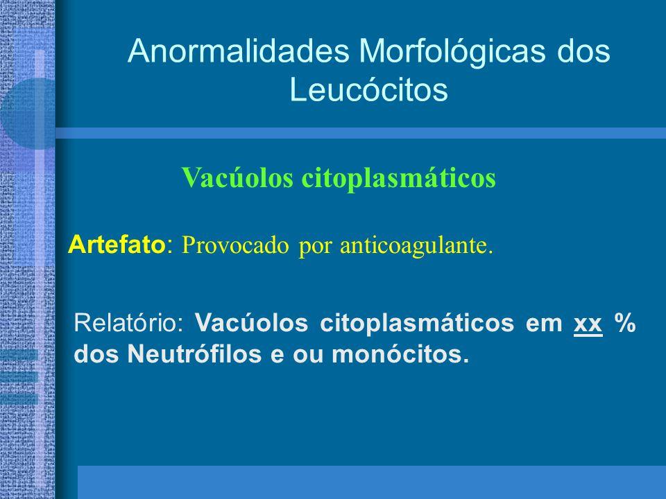 Anormalidades Morfológicas dos Leucócitos Vacúolos citoplasmáticos Artefato: Provocado por anticoagulante.