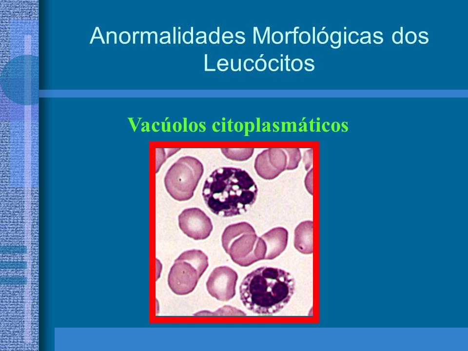 Anormalidades Morfológicas dos Leucócitos Vacúolos citoplasmáticos