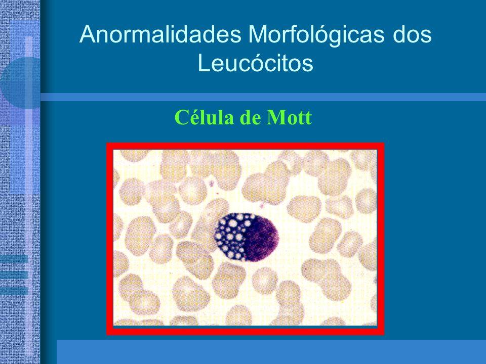 Anormalidades Morfológicas dos Leucócitos Célula de Mott