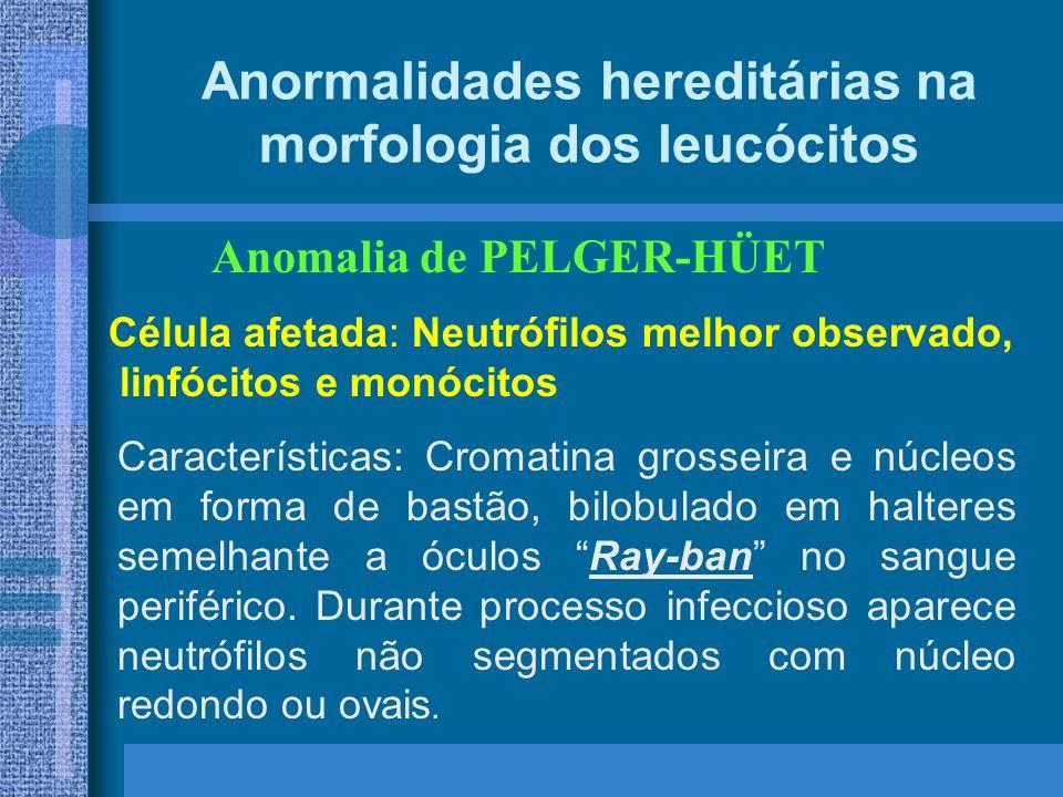 Anormalidades hereditárias na morfologia dos leucócitos Anomalia de PELGER-HÜET Célula afetada: Neutrófilos melhor observado, linfócitos e monócitos Características: Cromatina grosseira e núcleos em forma de bastão, bilobulado em halteres semelhante a óculos Ray-ban no sangue periférico.