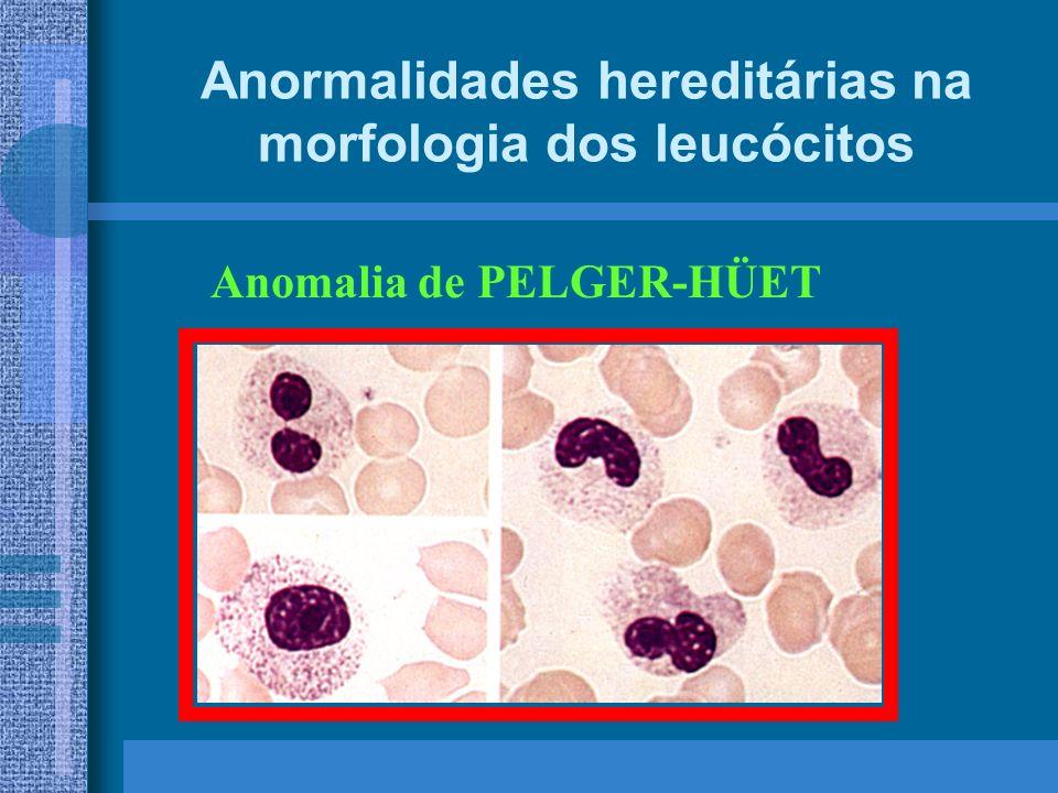 Anormalidades hereditárias na morfologia dos leucócitos Anomalia de PELGER-HÜET