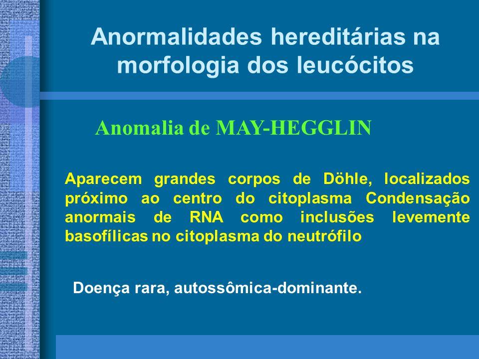 Anormalidades hereditárias na morfologia dos leucócitos Anomalia de MAY-HEGGLIN Doença rara, autossômica-dominante.