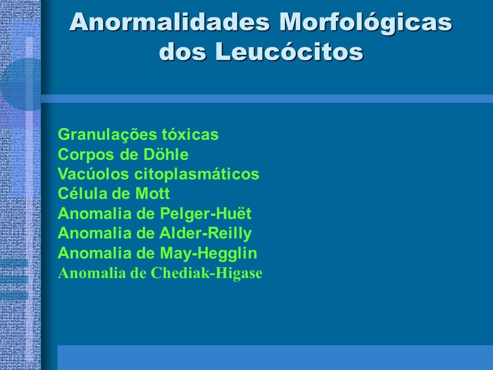 Anormalidades Morfológicas dos Leucócitos Granulações tóxicas Corpos de Döhle Vacúolos citoplasmáticos Célula de Mott Anomalia de Pelger-Huët Anomalia de Alder-Reilly Anomalia de May-Hegglin Anomalia de Chediak-Higase