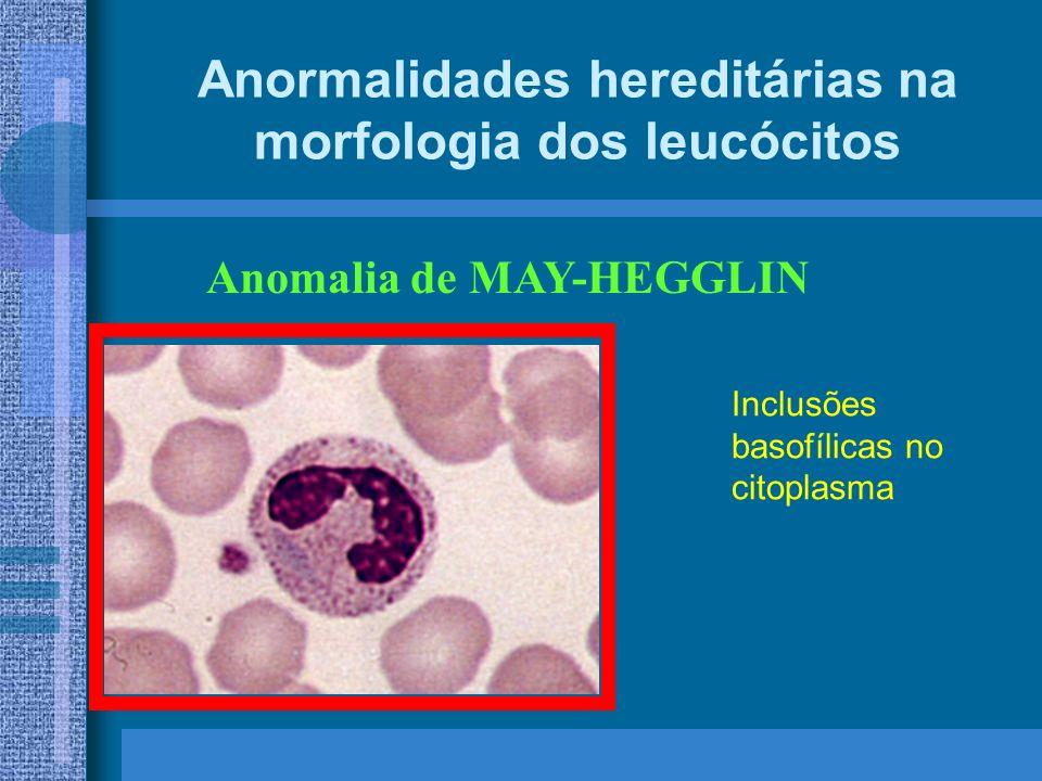 Anormalidades hereditárias na morfologia dos leucócitos Anomalia de MAY-HEGGLIN Inclusões basofílicas no citoplasma