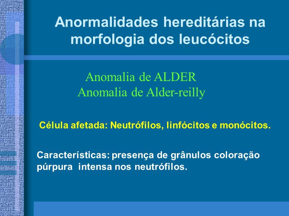 Anormalidades hereditárias na morfologia dos leucócitos Anomalia de ALDER Anomalia de Alder-reilly Características: presença de grânulos coloração púrpura intensa nos neutrófilos.
