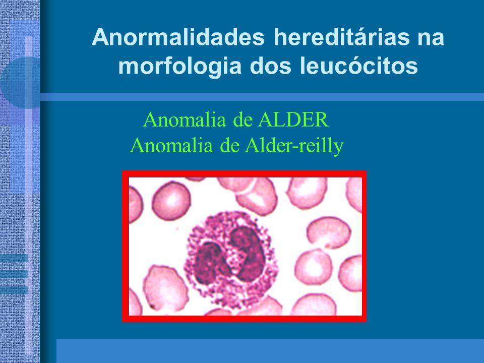Anormalidades hereditárias na morfologia dos leucócitos Anomalia de ALDER Anomalia de Alder-reilly
