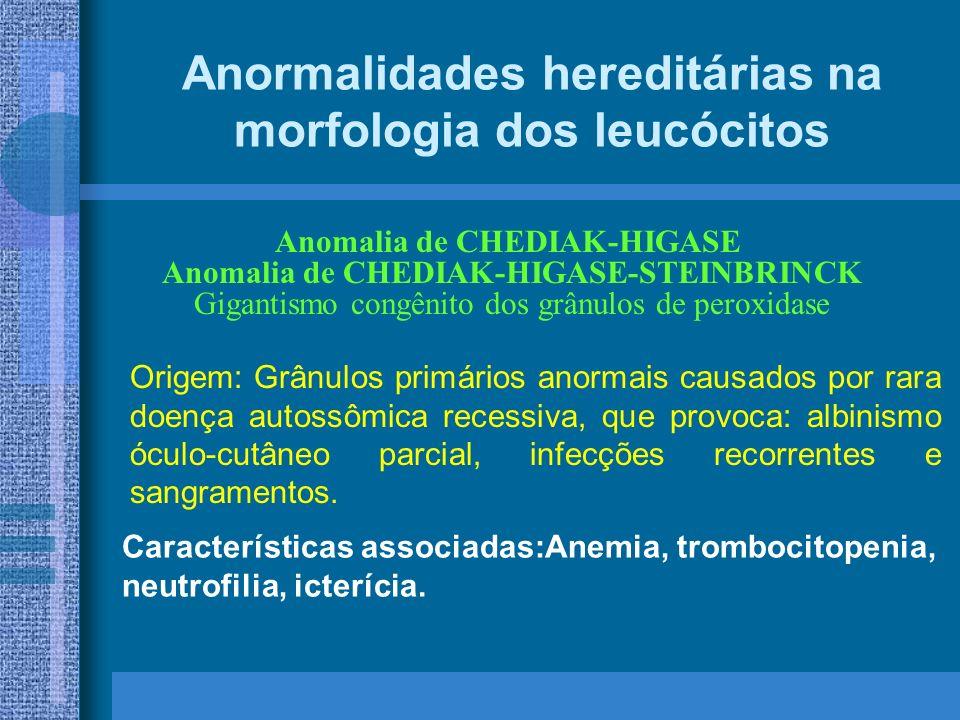 Anormalidades hereditárias na morfologia dos leucócitos Características associadas:Anemia, trombocitopenia, neutrofilia, icterícia.