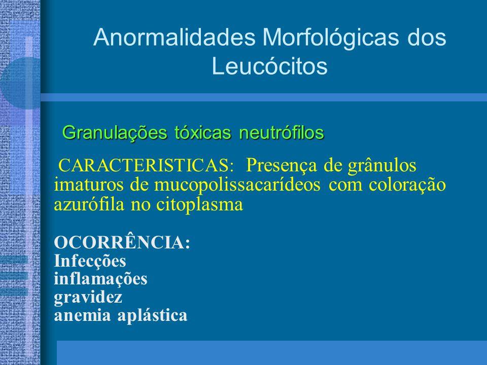 Anormalidades Morfológicas dos Leucócitos CARACTERISTICAS: Presença de grânulos imaturos de mucopolissacarídeos com coloração azurófila no citoplasma OCORRÊNCIA: Infecções inflamações gravidez anemia aplástica Granulações tóxicas neutrófilos