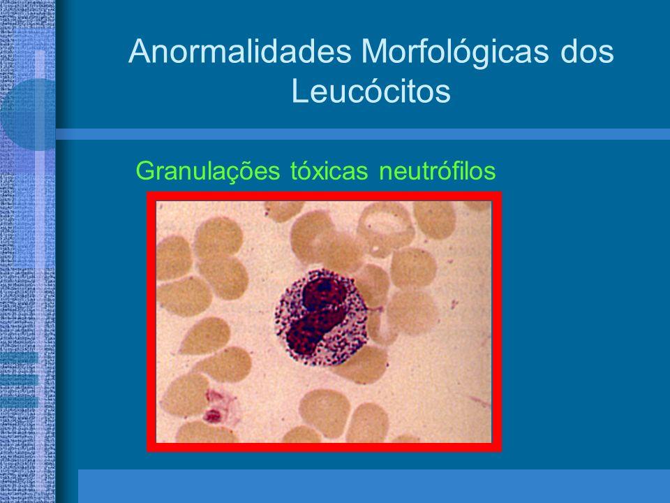 Anormalidades Morfológicas dos Leucócitos Granulações tóxicas neutrófilos