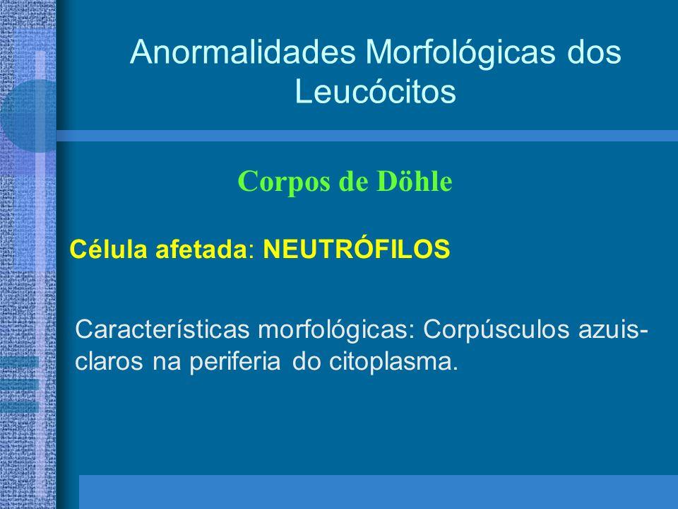 Anormalidades Morfológicas dos Leucócitos Corpos de Döhle Célula afetada: NEUTRÓFILOS Características morfológicas: Corpúsculos azuis- claros na periferia do citoplasma.