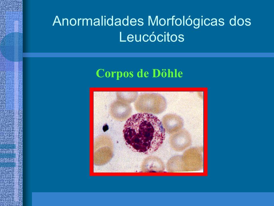 Anormalidades Morfológicas dos Leucócitos Corpos de Döhle