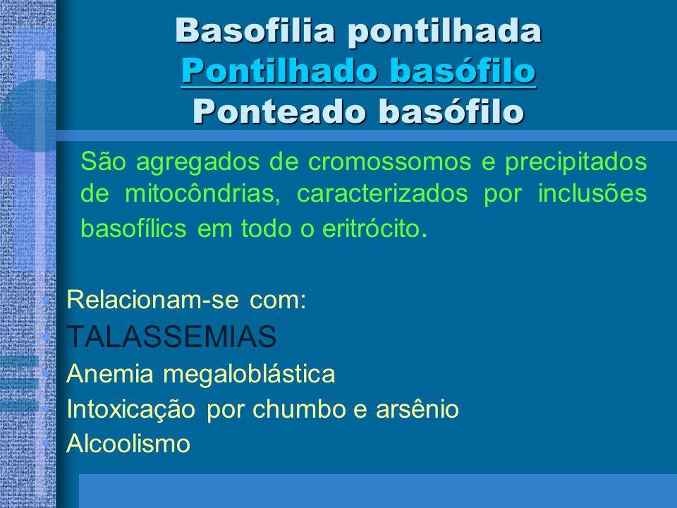 Basofilia pontilhada Pontilhado basófilo Ponteado basófilo Relacionam-se com: TALASSEMIAS Anemia megaloblástica Intoxicação por chumbo e arsênio Alcoo