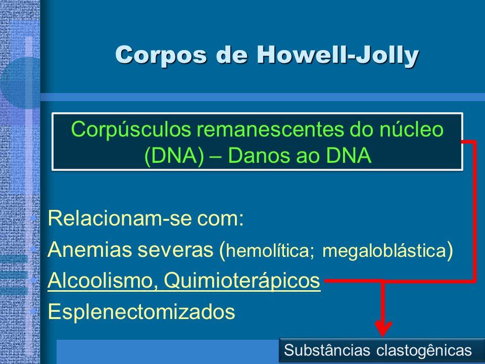 Corpos de Howell-Jolly Relacionam-se com: Anemias severas ( hemolítica; megaloblástica ) Alcoolismo, Quimioterápicos Esplenectomizados Corpúsculos rem
