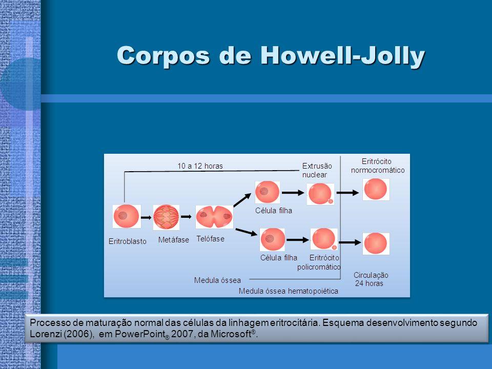 Processo de maturação normal das células da linhagem eritrocitária. Esquema desenvolvimento segundo Lorenzi (2006), em PowerPoint ® 2007, da Microsoft