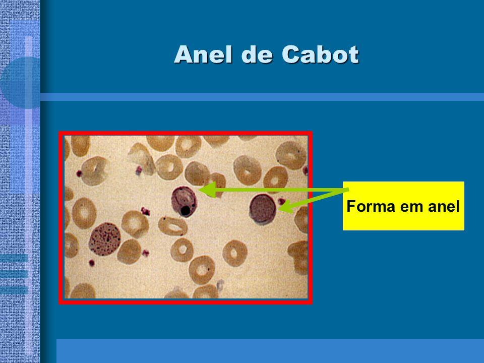 Anel de Cabot Forma em anel
