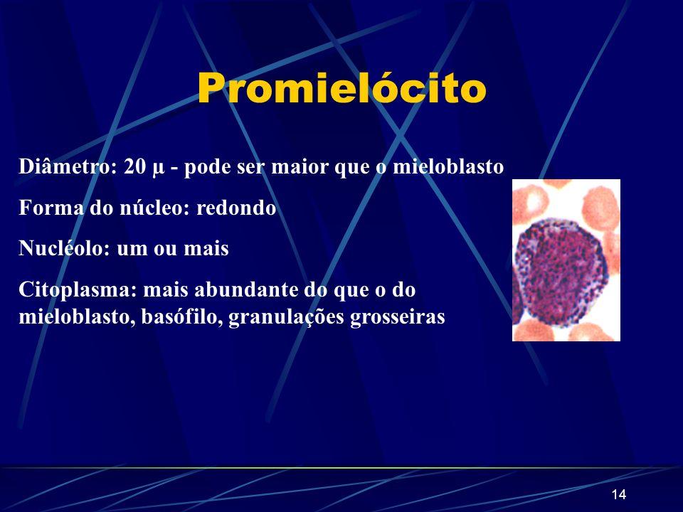 13 Comparação 1 2 1 - Monócito 2 - Mieloblasto
