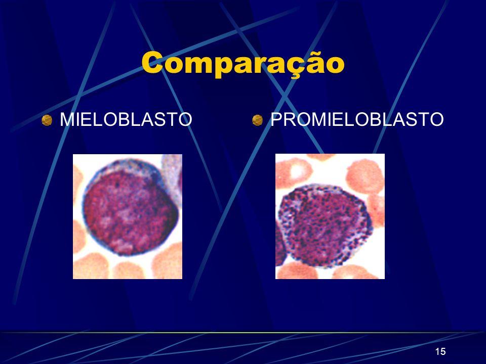 14 Promielócito Diâmetro: 20 µ - pode ser maior que o mieloblasto Forma do núcleo: redondo Nucléolo: um ou mais Citoplasma: mais abundante do que o do