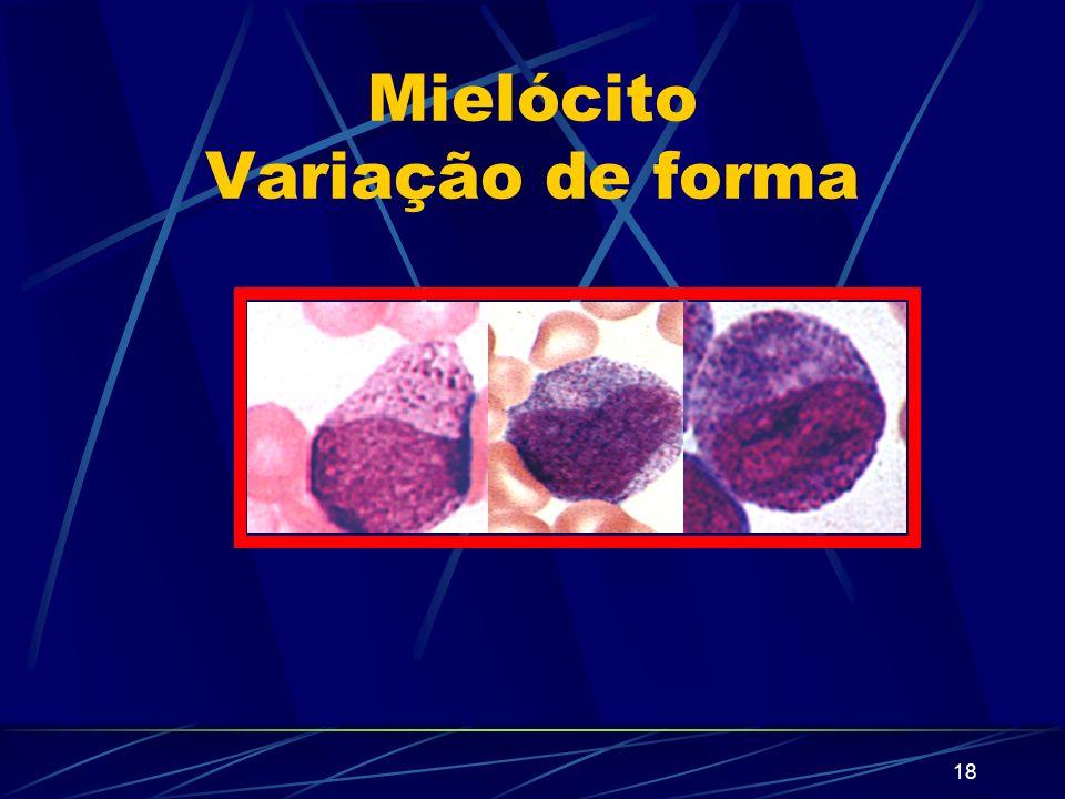 17 Mielócito Diâmetro: 18 µ - pode ser menor Forma do núcleo: redondo ou oval Nucléolo: não se visualizam na maioria dos mc Citoplasma: acidófilo com