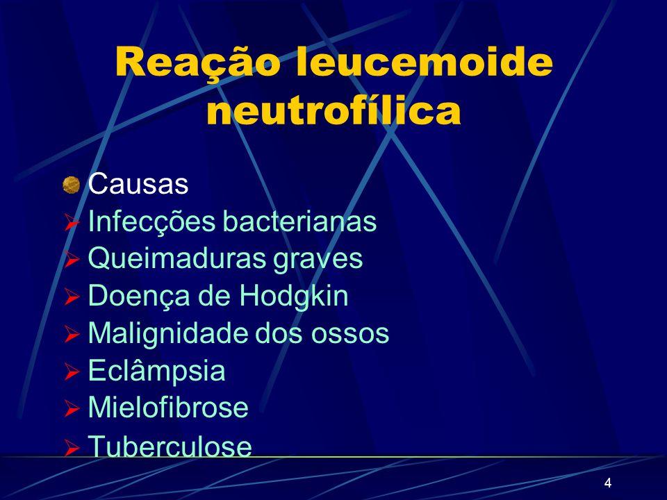 3 Reação leucemóide Neutrofílica Eosinofílica Linfocítica