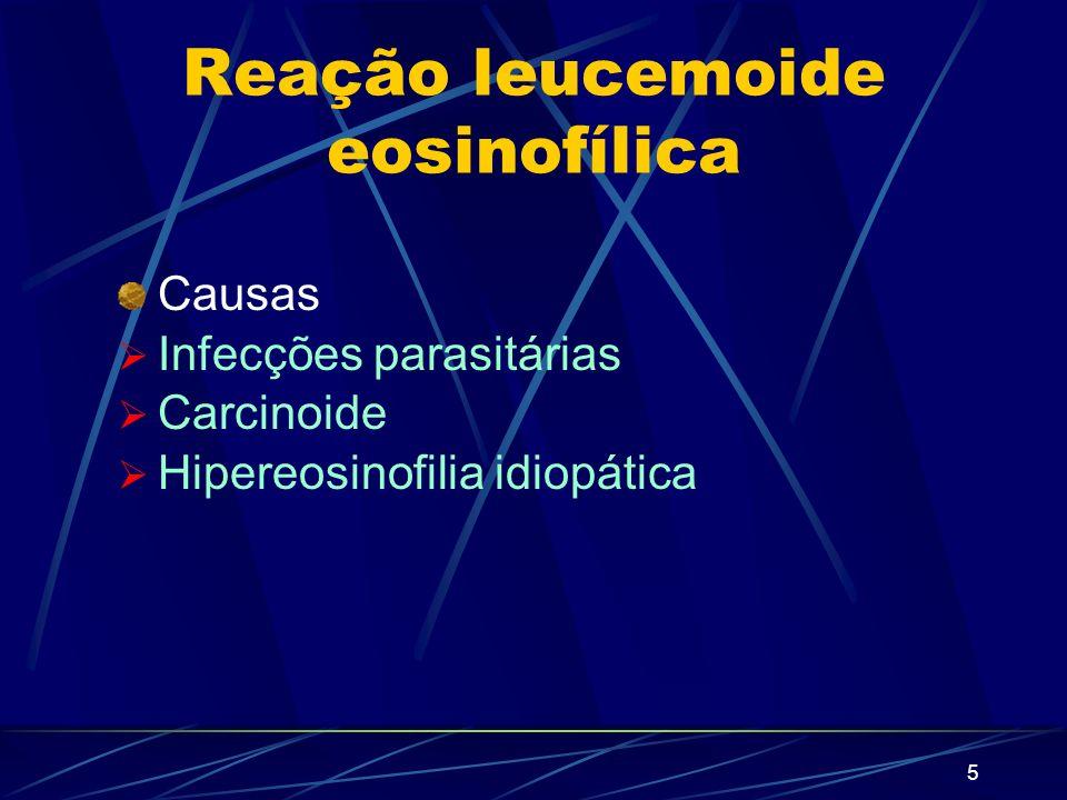 4 Reação leucemoide neutrofílica Causas Infecções bacterianas Queimaduras graves Doença de Hodgkin Malignidade dos ossos Eclâmpsia Mielofibrose Tuberc