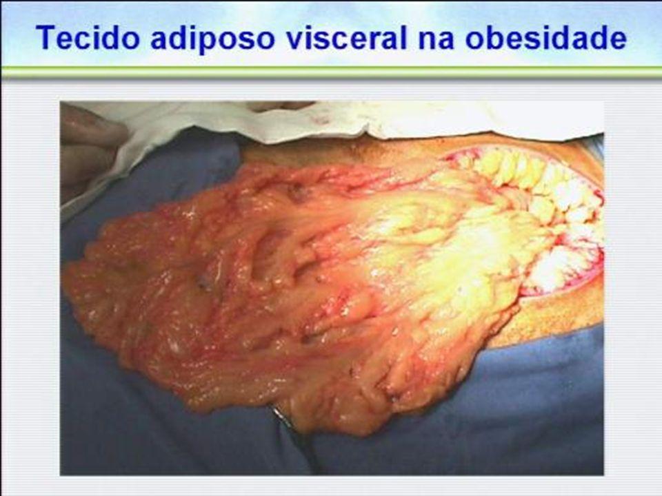 I Diretriz de Prevenção da Aterosclerose na Infância e na Adolescência Arq.