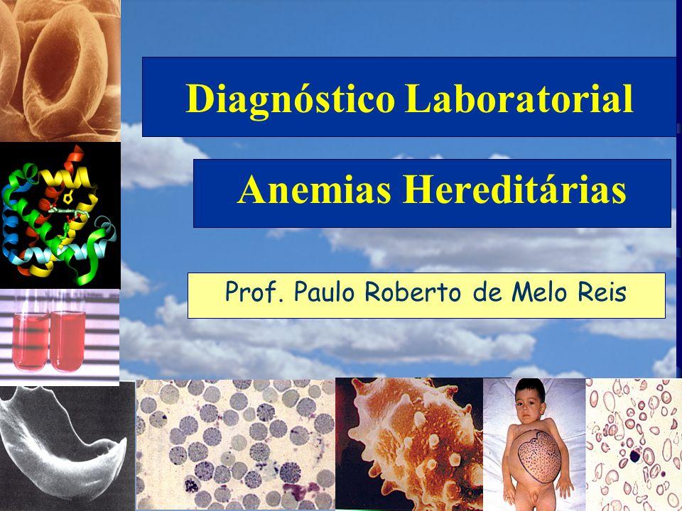 RESUMO DAS ALTERAÇÕES LABORATORIAIS ( ) Hb Fetal 0 - 1% Hb A 2 2,0 - 4% Hb A 96 - 98% Conseqüências da redução de síntese de cadeias alfa ALFA TALASSEMIA Traços de Hb H na eletroforese Precipitados de Hb H nos eritrócitos Discreta microcitose Anemia ( ) Prof.