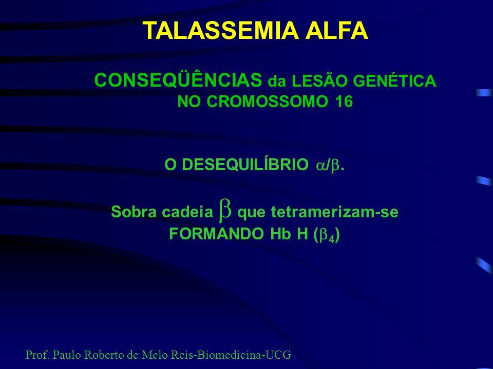 Talassemia Beta Prof. Paulo Roberto de Melo Reis-Biomedicina-UCG