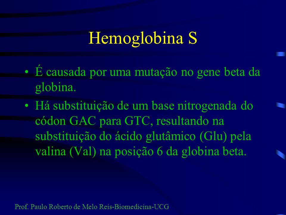 Hemoglobinas variantes É um grupo de anormalidades hereditárias em que a produção de hemoglobina normal é suprimida e substituída, parcial ou totalmen